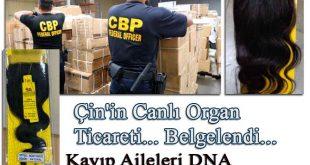Çin'in Canlı Organ Ticareti Belgelendi. Ailesi Kayıp Uygurlar DNA Eşleştirmesi için sırada.